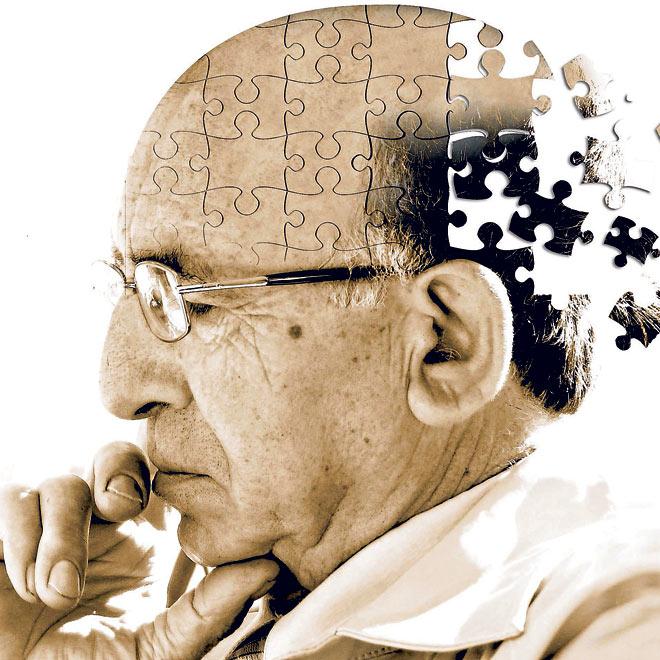 Alzheimer-tratat-cu-celule-stem